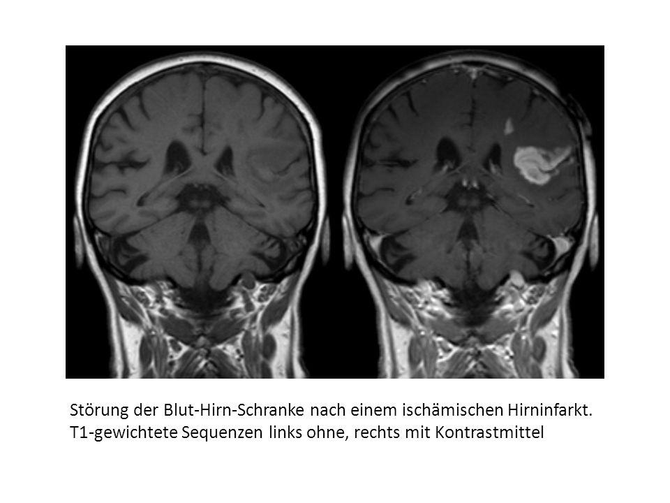 Störung der Blut-Hirn-Schranke nach einem ischämischen Hirninfarkt.