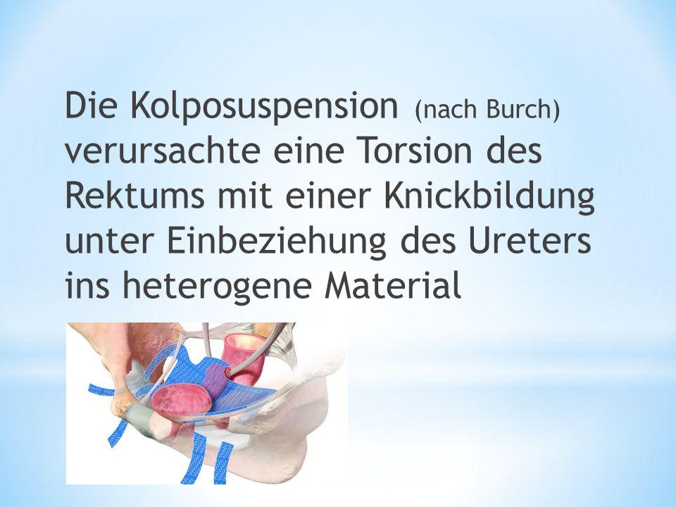 Die Kolposuspension (nach Burch) verursachte eine Torsion des Rektums mit einer Knickbildung unter Einbeziehung des Ureters ins heterogene Material