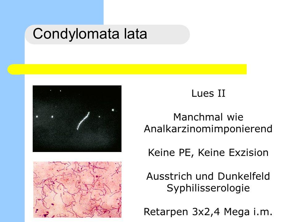 Condylomata lata Lues II Manchmal wie Analkarzinomimponierend Keine PE, Keine Exzision Ausstrich und Dunkelfeld Syphilisserologie Retarpen 3x2,4 Mega