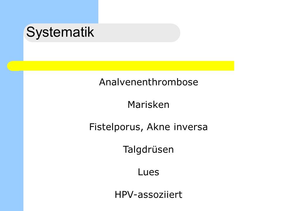 Perianalthrombose Genese unklar, individuell Schmerzhafter, praller, bläulich/schwarzer Knoten Keine Hämorrhoiden