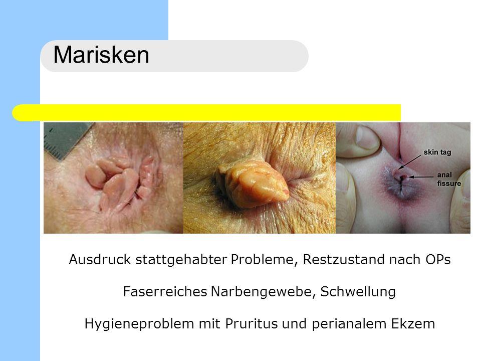 Marisken Therapie Nur bei Beschwerden, sonst TU-Angst nehmen Analhygiene mit Waschen und Hautschutz Exzision, ev.