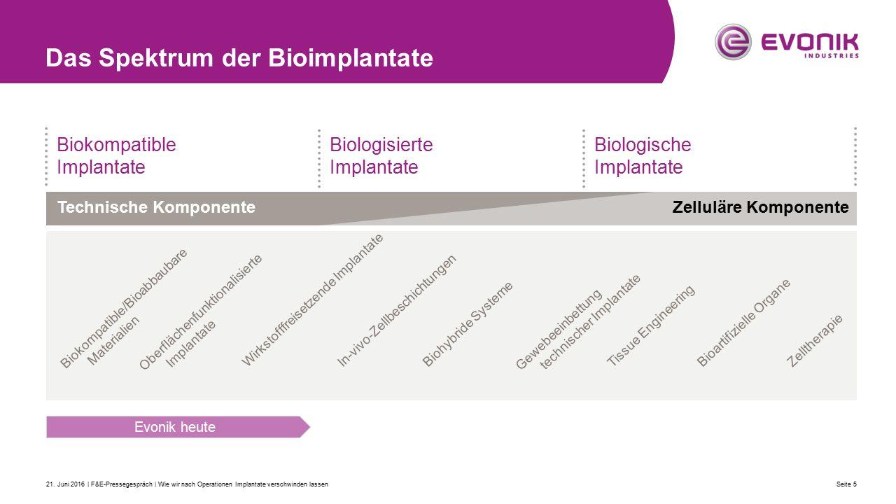 Das Spektrum der Bioimplantate Seite 521.