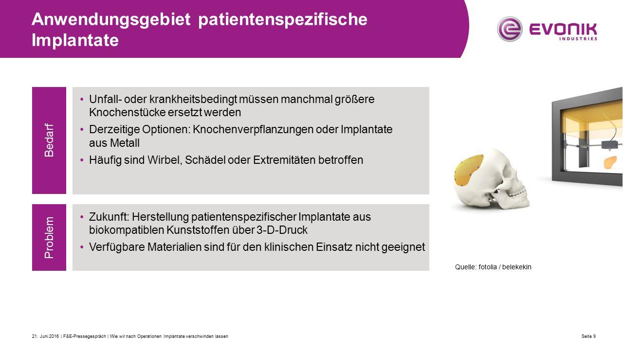 Anwendungsgebiet patientenspezifische Implantate Seite 921.