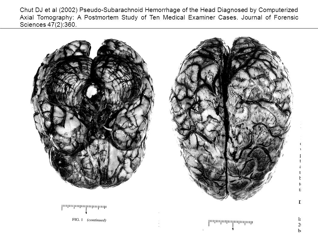Plain CT of the head was interpreted by a neurologist and a general radiologist as demonstrating subarachnoid hemorrhage in the basal cisterns, convexity, and interhemispheric fissure (Figures 1, 2, 3).