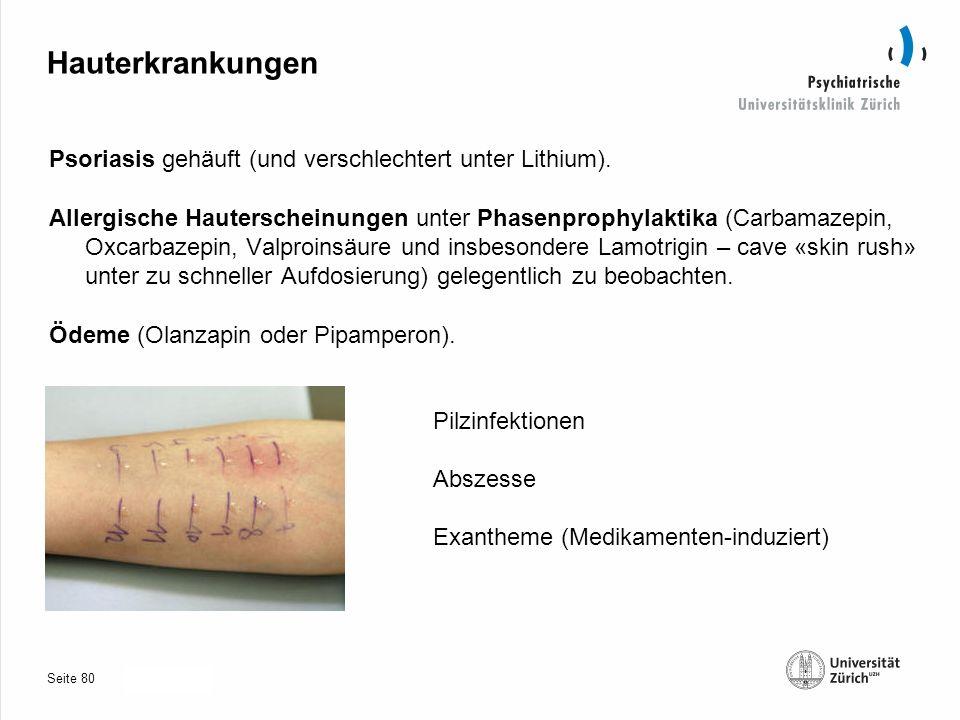 Seite 30.10.2013 Hauterkrankungen Psoriasis gehäuft (und verschlechtert unter Lithium).
