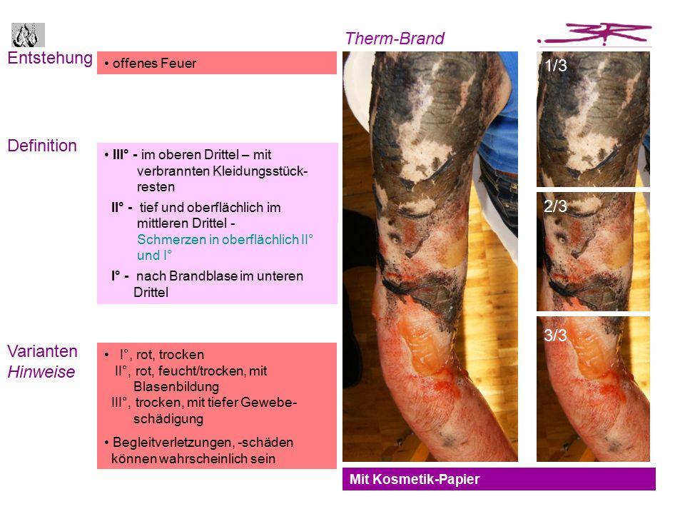 Entstehung Definition Varianten Hinweise Mit Kosmetik-Papier offenes Feuer perforierte Haut mit Abrasionsmuster und Kratzspuren Kapillargefässe sind betroffen die punktartig bluten können III° - im oberen Drittel – mit verbrannten Kleidungsstück- resten II° - tief und oberflächlich im mittleren Drittel - Schmerzen in oberflächlich II° und I° I° - nach Brandblase im unteren Drittel I°, rot, trocken II°, rot, feucht/trocken, mit Blasenbildung III°, trocken, mit tiefer Gewebe- schädigung Begleitverletzungen, -schäden können wahrscheinlich sein Therm-Brand 1/3 2/3 3/3