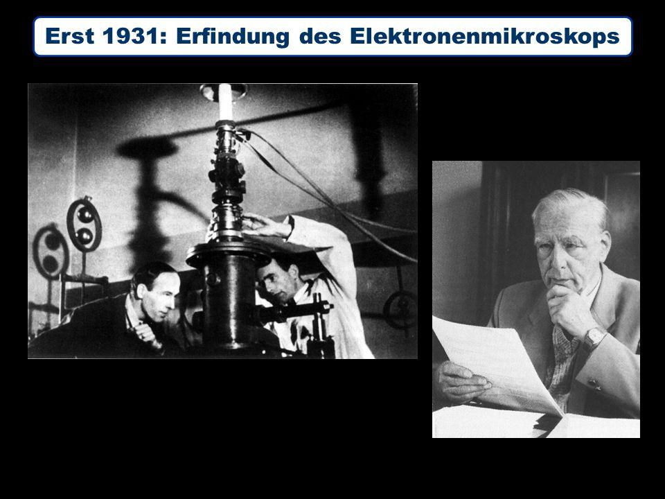 Erst 1931: Erfindung des Elektronenmikroskops Ernst Ruska (1906 – 1988) 1931: Erstes Elektronenmikroskop