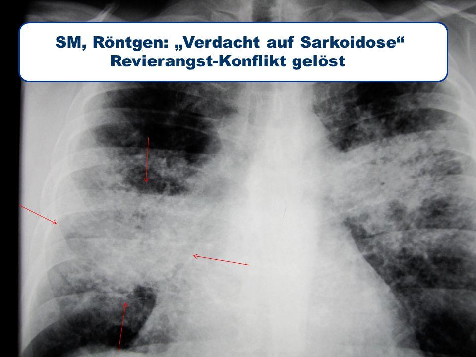 """22/2 heidenreich 3B Lungenrundherd SM, Röntgen: """"Verdacht auf Sarkoidose Revierangst-Konflikt gelöst"""