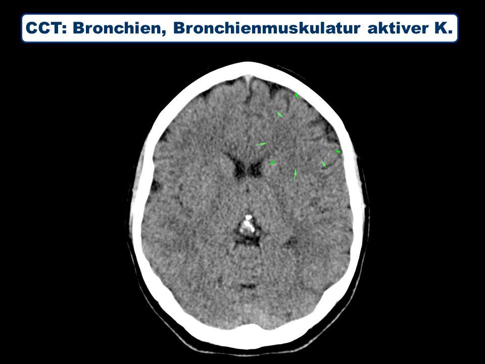 CCT: Bronchien, Bronchienmuskulatur aktiver K.