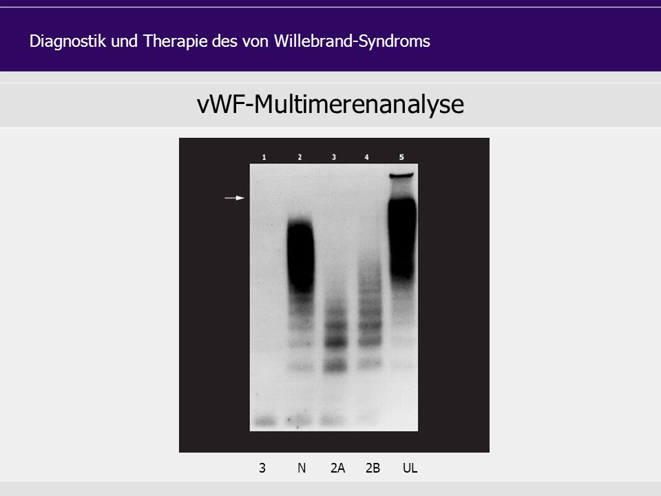 vWF-Multimerenanalyse 3N2A2BUL Diagnostik und Therapie des von Willebrand-Syndroms