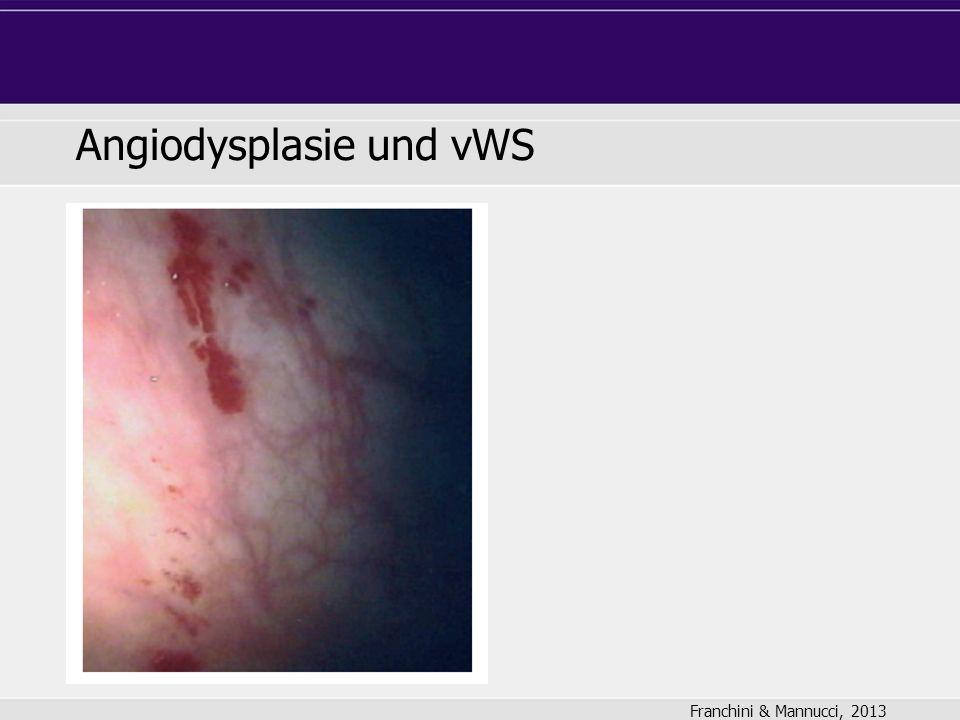Angiodysplasie und vWS Franchini & Mannucci, 2013