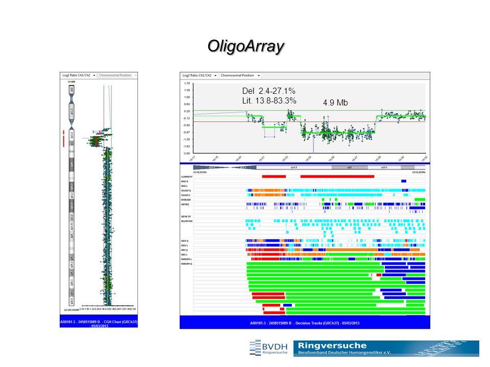 OligoArray Del 2.4-27.1% Lit. 13.8-83.3% 4.9 Mb
