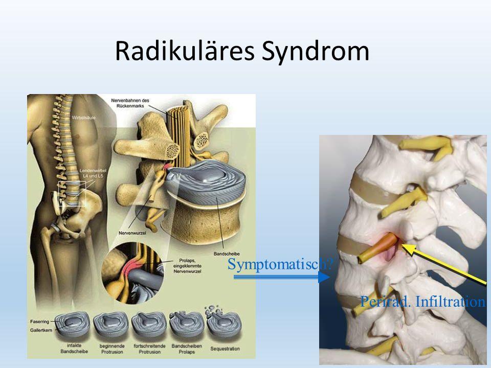 17 Radikuläres Syndrom Perirad. Infiltration Symptomatisch
