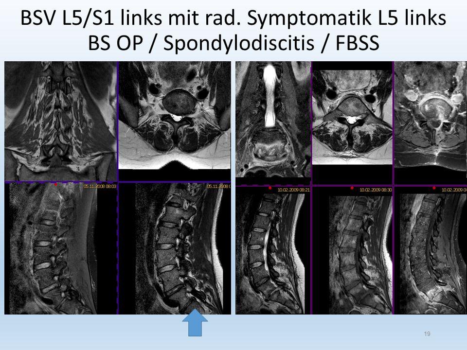 BSV L5/S1 links mit rad. Symptomatik L5 links BS OP / Spondylodiscitis / FBSS 19