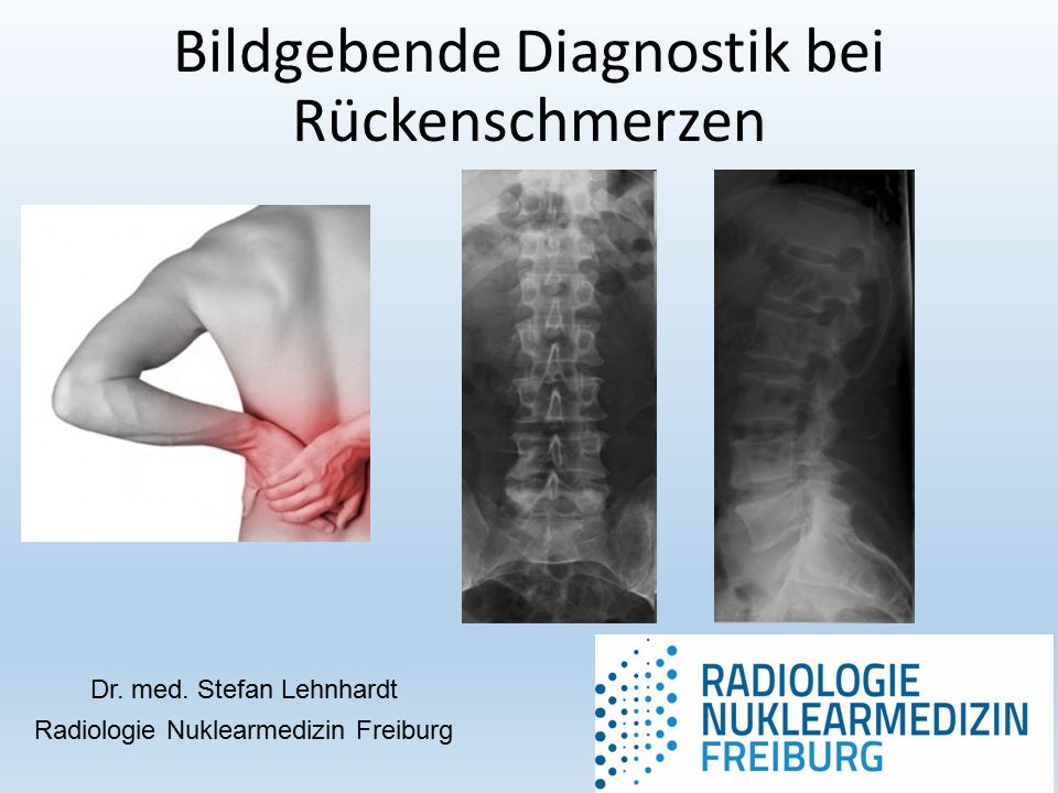 Bildgebende Diagnostik bei Rückenschmerzen Dr. med.