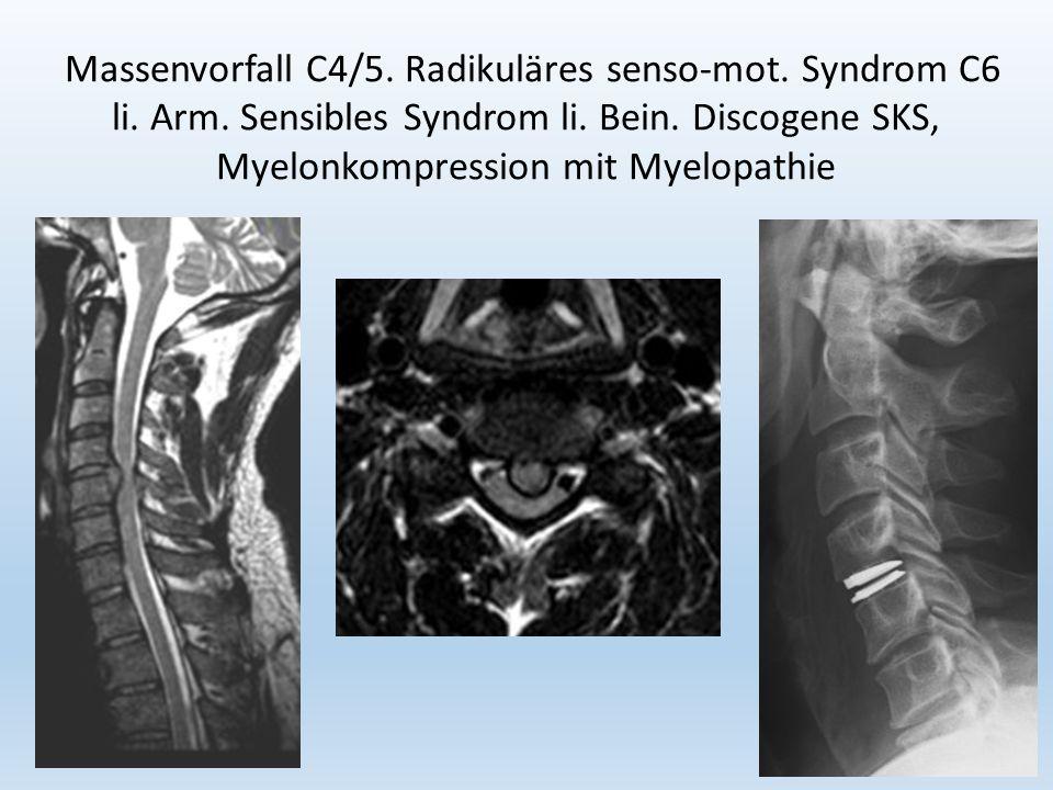 20 Massenvorfall C4/5. Radikuläres senso-mot. Syndrom C6 li.