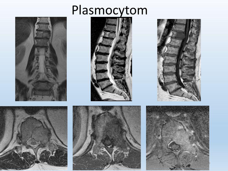 29 Plasmocytom