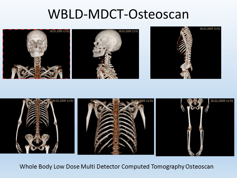 WBLD-MDCT-Osteoscan Whole Body Low Dose Multi Detector Computed Tomography Osteoscan