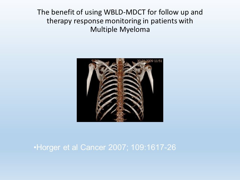 The benefit of using WBLD-MDCT for follow up and therapy response monitoring in patients with Multiple Myeloma Horger et al Cancer 2007; 109:
