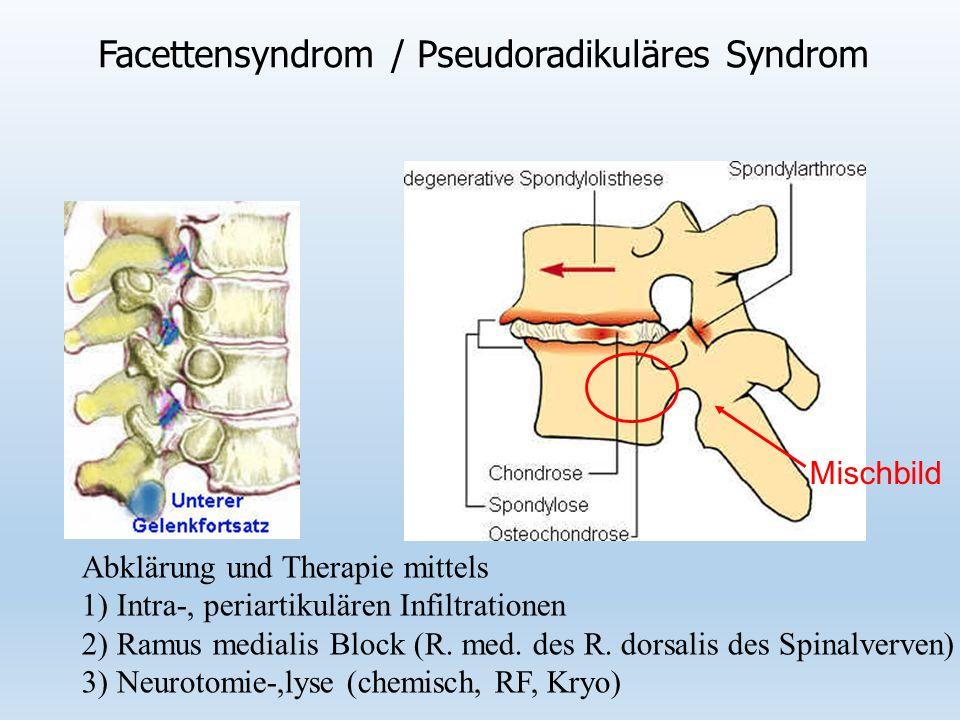 Facettensyndrom / Pseudoradikuläres Syndrom Abklärung und Therapie mittels 1) Intra-, periartikulären Infiltrationen 2) Ramus medialis Block (R.