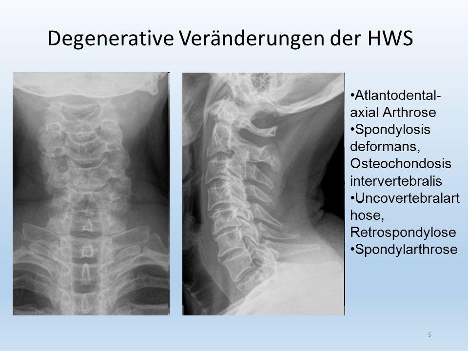 Degenerative Veränderungen der HWS 5 Atlantodental- axial Arthrose Spondylosis deformans, Osteochondosis intervertebralis Uncovertebralart hose, Retrospondylose Spondylarthrose