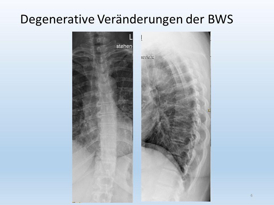 Degenerative Veränderungen der BWS 6