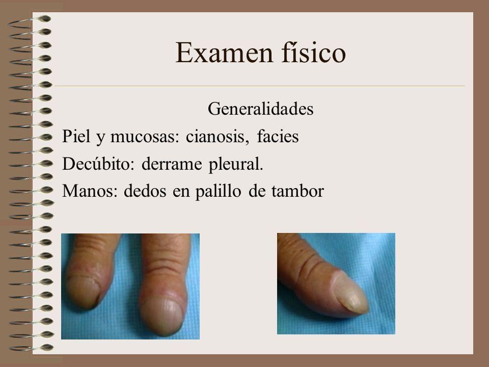 Examen físico Generalidades Piel y mucosas: cianosis, facies Decúbito: derrame pleural.