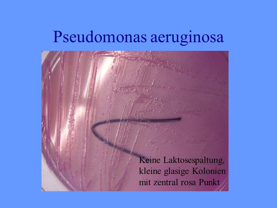 Pseudomonas aeruginosa Keine Laktosespaltung, kleine glasige Kolonien mit zentral rosa Punkt