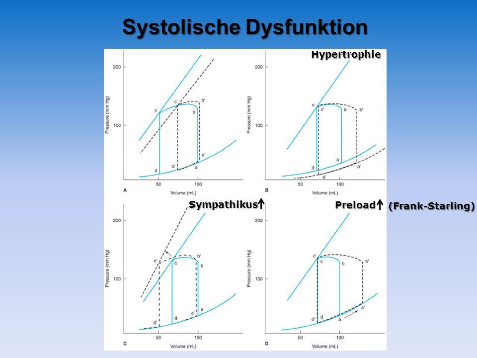 Systolische Dysfunktion Preload Sympathikus Hypertrophie (Frank-Starling)