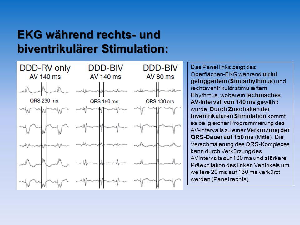 EKG während rechts- und biventrikulärer Stimulation: Das Panel links zeigt das Oberflächen-EKG während atrial getriggertem (Sinusrhythmus) und rechtsventrikulär stimuliertem Rhythmus, wobei ein technisches AV-Intervall von 140 ms gewählt wurde.