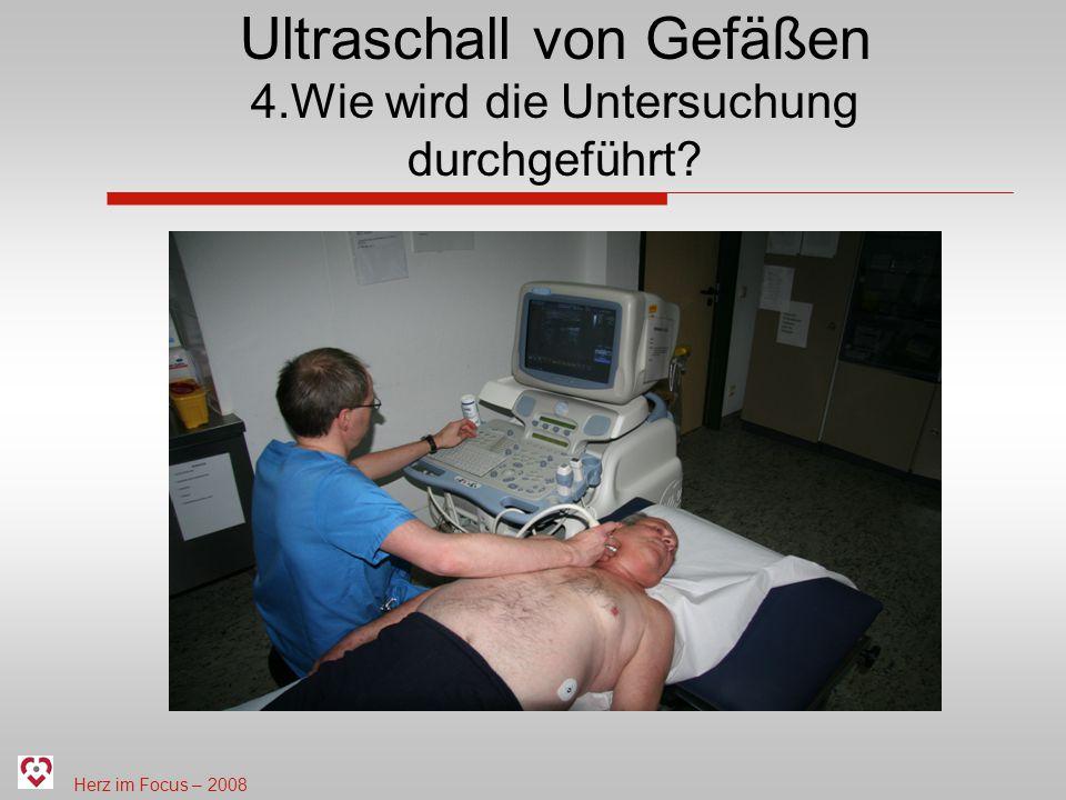 Herz im Focus – 2008 Ultraschall von Gefäßen 4.Wie wird die Untersuchung durchgeführt?