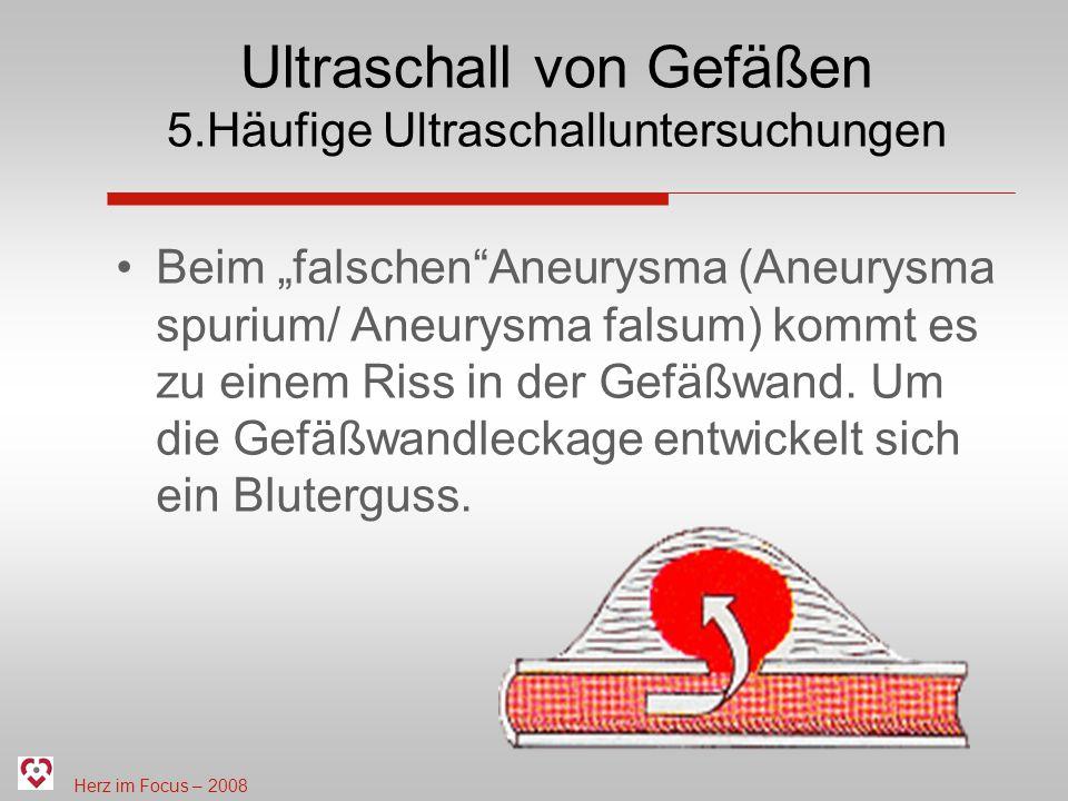 Herz im Focus – 2008 Ultraschall von Gefäßen 5.Häufige Ultraschalluntersuchungen Beim falschenAneurysma (Aneurysma spurium/ Aneurysma falsum) kommt es