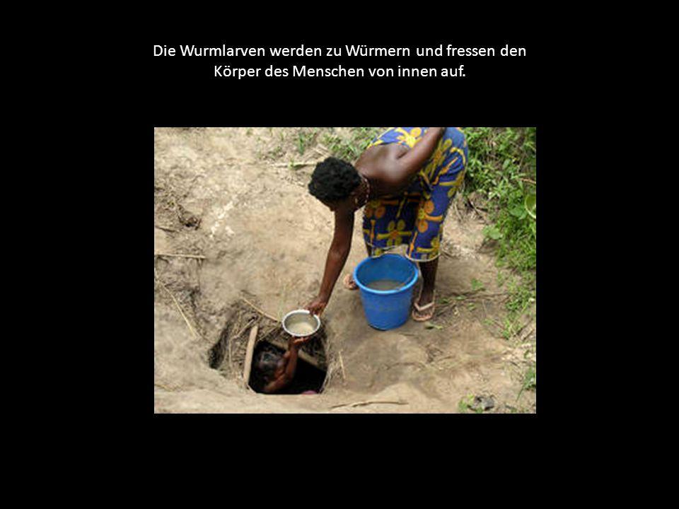 Die Menschen infizieren sich mit den im Wasser der unsauberen Flüsse lebenden Wurmlarven. Diese fressen sich durch die Haut und ernähren sich durch de