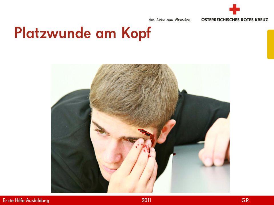 www.roteskreuz.at Version April | 2011 Platzwunde am Kopf 34 Erste Hilfe Ausbildung 2011 G.R.