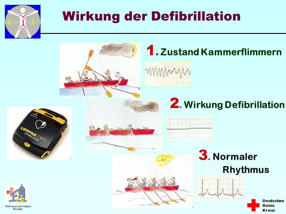Deutsches Rotes Kreuz Rotkreuz-Lehrinstitut Münster Wirkung der Defibrillation 1. Zustand Kammerflimmern 2. Wirkung Defibrillation 3. Normaler Rhythmu