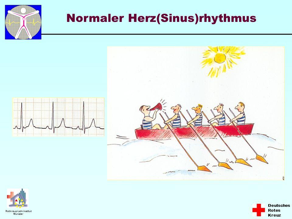 Deutsches Rotes Kreuz Rotkreuz-Lehrinstitut Münster Normaler Herz(Sinus)rhythmus
