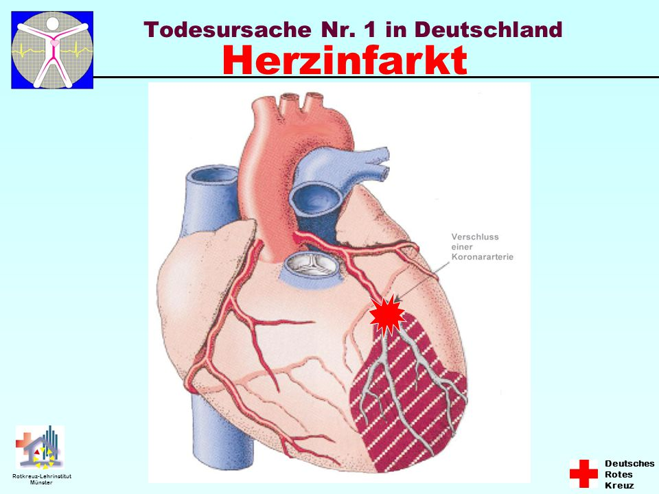 Deutsches Rotes Kreuz Rotkreuz-Lehrinstitut Münster Störung der Herztätigkeit Kammerflimmern Ungeordnete und schnelle Kontraktionen des Herzens Das Herz hat keine Pumpleistung mehr Kein Puls (keine Lebenszeichen)
