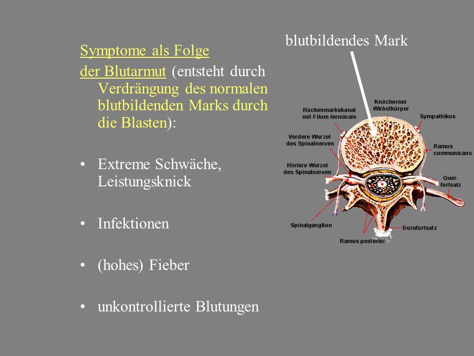 Symptome als Folge der Blutarmut (entsteht durch Verdrängung des normalen blutbildenden Marks durch die Blasten): •Extreme Schwäche, Leistungsknick •I