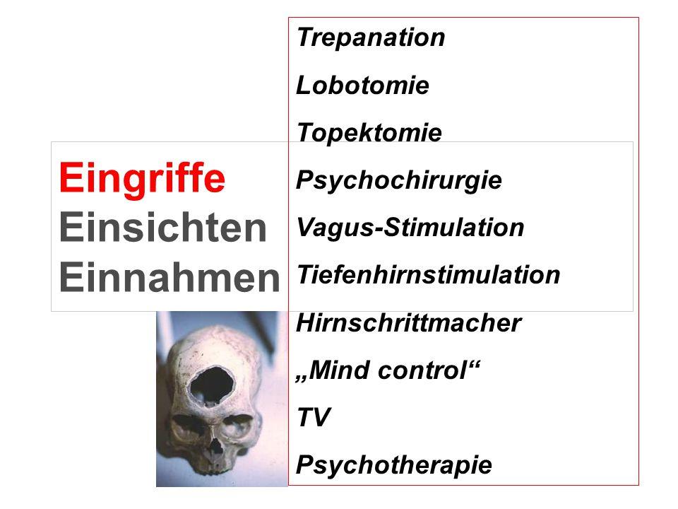 """Eingriffe Einsichten Einnahmen Trepanation Lobotomie Topektomie Psychochirurgie Vagus-Stimulation Tiefenhirnstimulation Hirnschrittmacher """"Mind contro"""