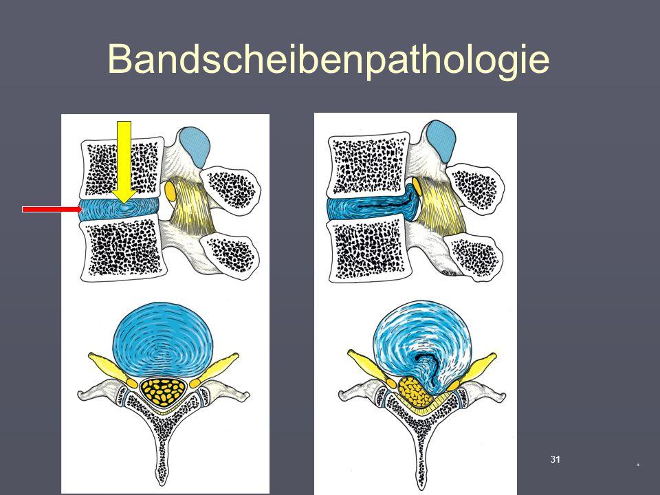"""Radiologische Pathologie der WS  """"Wirbelgleiten"""" (Sponydylolisthese) 30 L 4 L 5"""