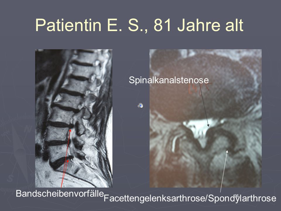 35 Patientin E. S., 81 Jahre alt Spondylosen Osteochondrosen Wirbelgleiten