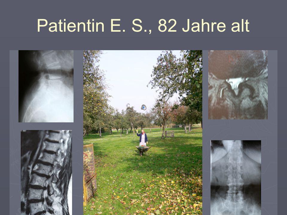 Patientin E. S., 82 Jahre alt 12 Monate später