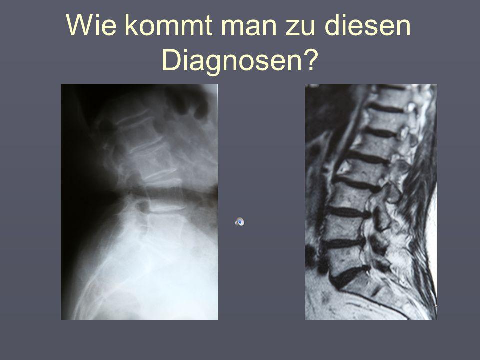 Orthopädische Diagnosen bei Chronischen Rückenschmerzen  Bandscheibenvorfall  Bandscheibendegeneration  Facettensyndrom/Spondylarthrose  Spondylos