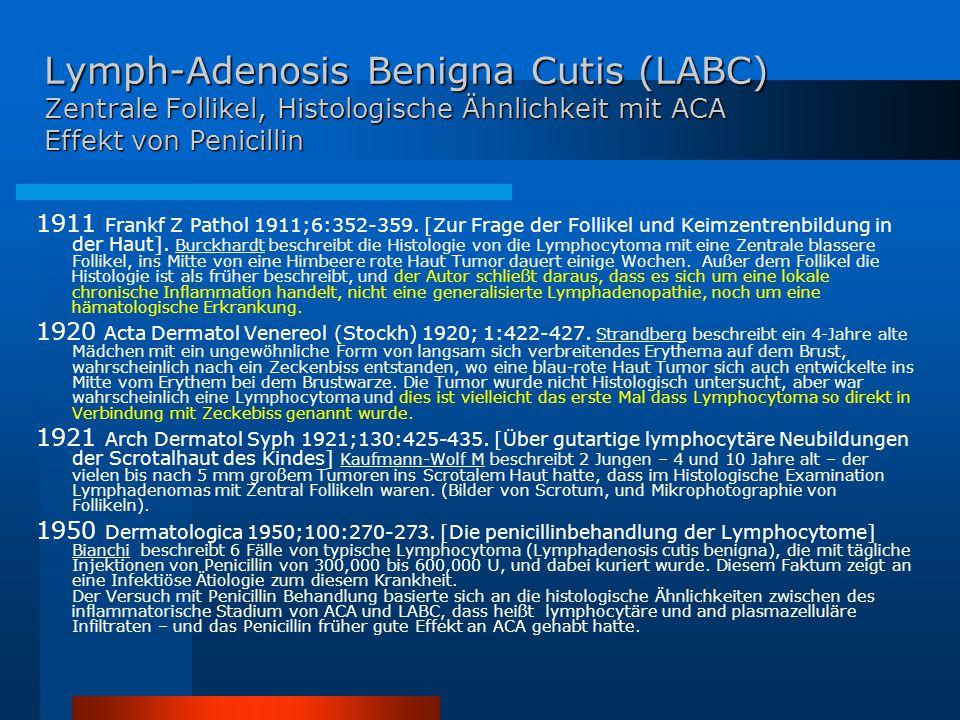 Lymph-Adenosis Benigna Cutis (LABC) Zentrale Follikel, Histologische Ähnlichkeit mit ACA Effekt von Penicillin 1911 Frankf Z Pathol 1911;6:352-359.