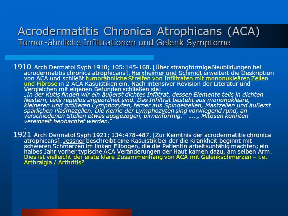 Acrodermatitis Chronica Atrophicans (ACA) Tumor-ähnliche Infiltrationen und Gelenk Symptome 1910 Arch Dermatol Syph 1910; 105:145-168. [Über strangför