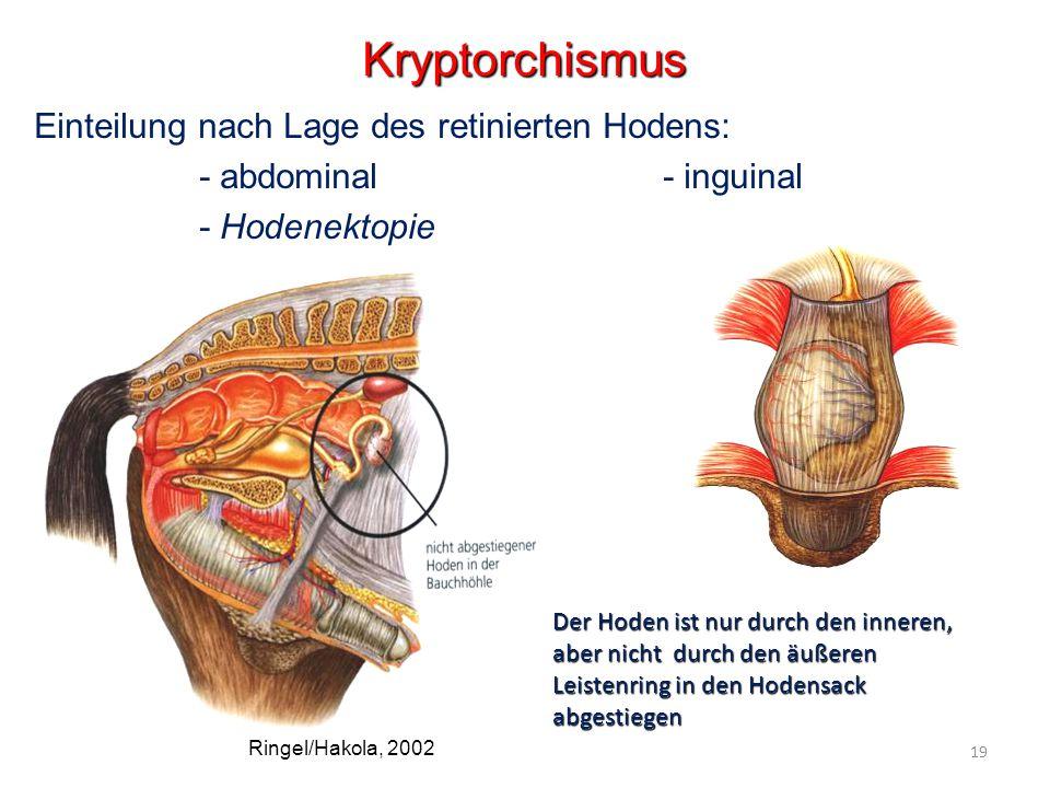 Einteilung nach Lage des retinierten Hodens: - abdominal - inguinal - Hodenektopie Kryptorchismus Der Hoden ist nur durch den inneren, aber nicht durch den äußeren Leistenring in den Hodensack abgestiegen Ringel/Hakola, 2002