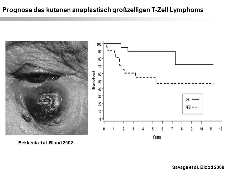 Prognose des kutanen anaplastisch großzelligen T-Zell Lymphoms Savage et al.
