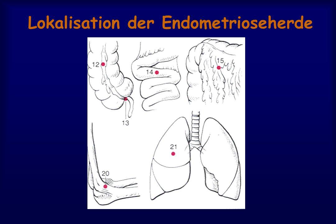 Lokalisation der Endometrioseherde