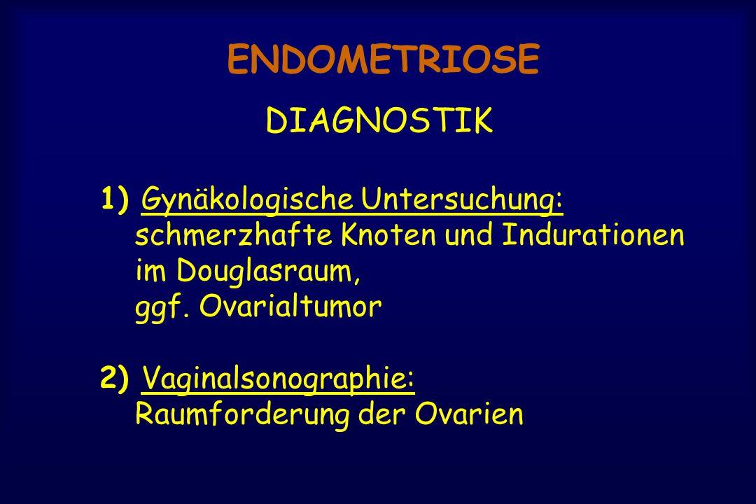 ENDOMETRIOSE DIAGNOSTIK 1) Gynäkologische Untersuchung: schmerzhafte Knoten und Indurationen im Douglasraum, ggf. Ovarialtumor 2) Vaginalsonographie: