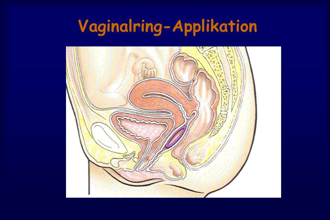 Vaginalring-Applikation